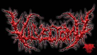 Vulvectomy - Putrescent Clitoral Fermentation (2007) {Full-Album}