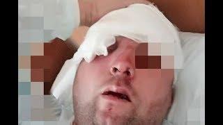 В центре Лондона жестоко избили русского витязя