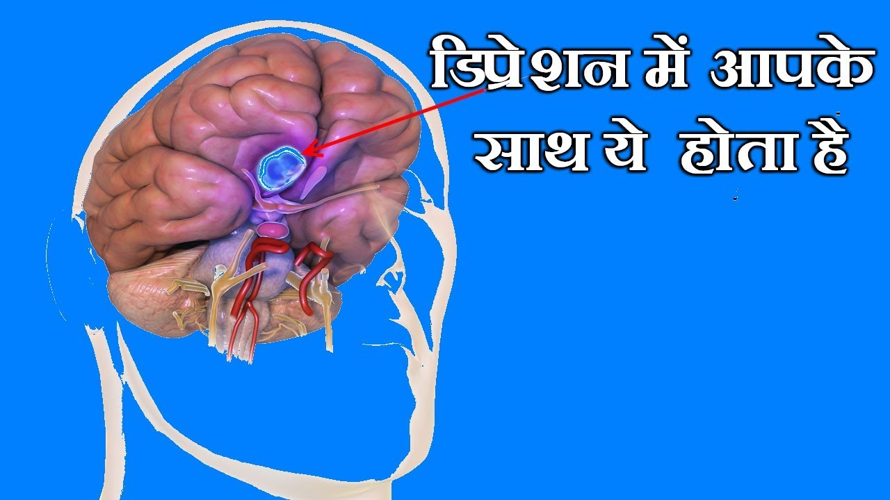 WHAT HAPPENS IN DEPRESSION | MEDICAL TECH [HINDI] | MEDICAL FACTS ...