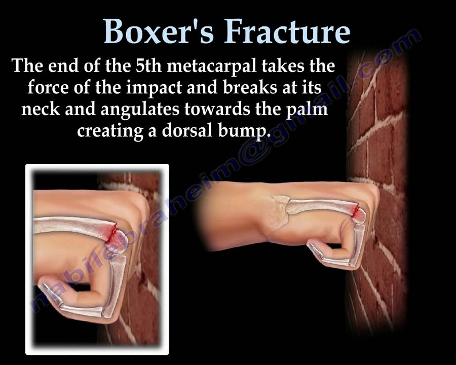 Boxer's Fracture - Everything You Need To Know - Dr  Nabil Ebraheim
