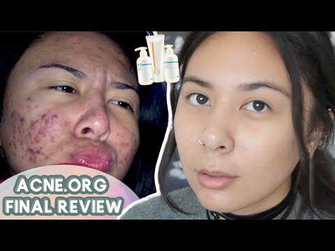 ACNE.ORG Journey: FINALE – but did it really work? 🤔 | riadavidet