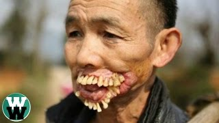 15 Horrible Diseases With No Cure