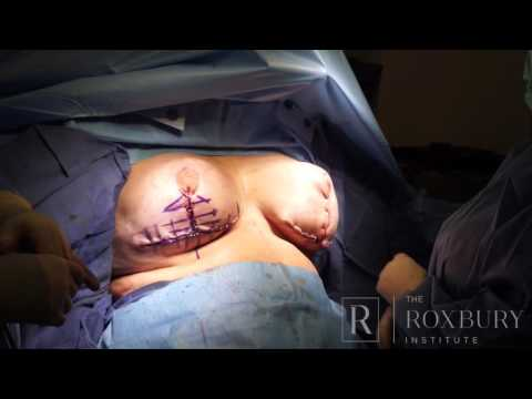 Breast Lipo Lift Surgery