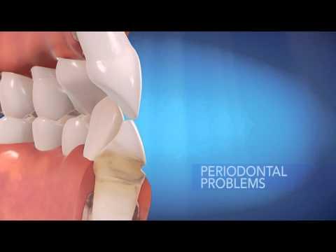 Clear Braces Sault Ste. Marie Dentist Dr Carlo Biasucci