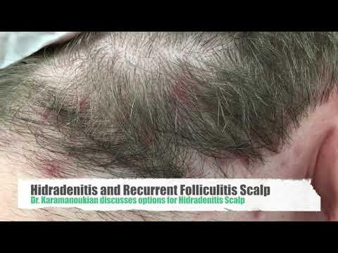 Hidradenitis Treatment Doctor in Los Angeles