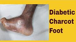 hqdefault - Anesthesia Diabetic Foot