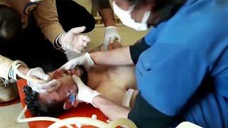 Шокирующие факты, которые доказывают постановку так называемых химических атак в Сирии.