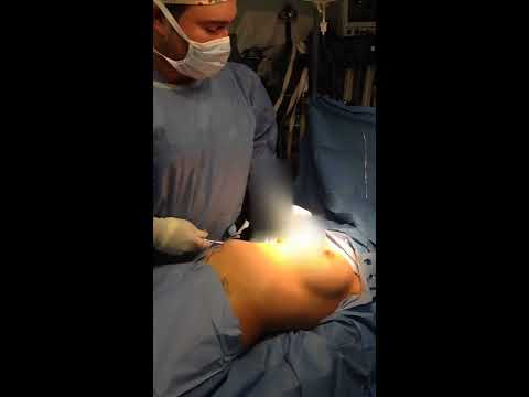 Breast Implants Through Belly Button - Breast Augmentation with Dr. Hughes in Los Angeles