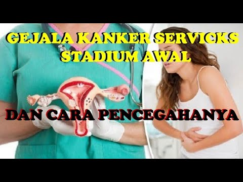 GEJALA KANKER SERVICKS STADIUM AWAL DAN CARA PENCEGAHANYA - YouTube