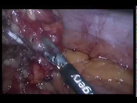 Laparoscopic extraction of a lost intra-uterine device . Dr.Gamal Sakr, FRCS,MD.