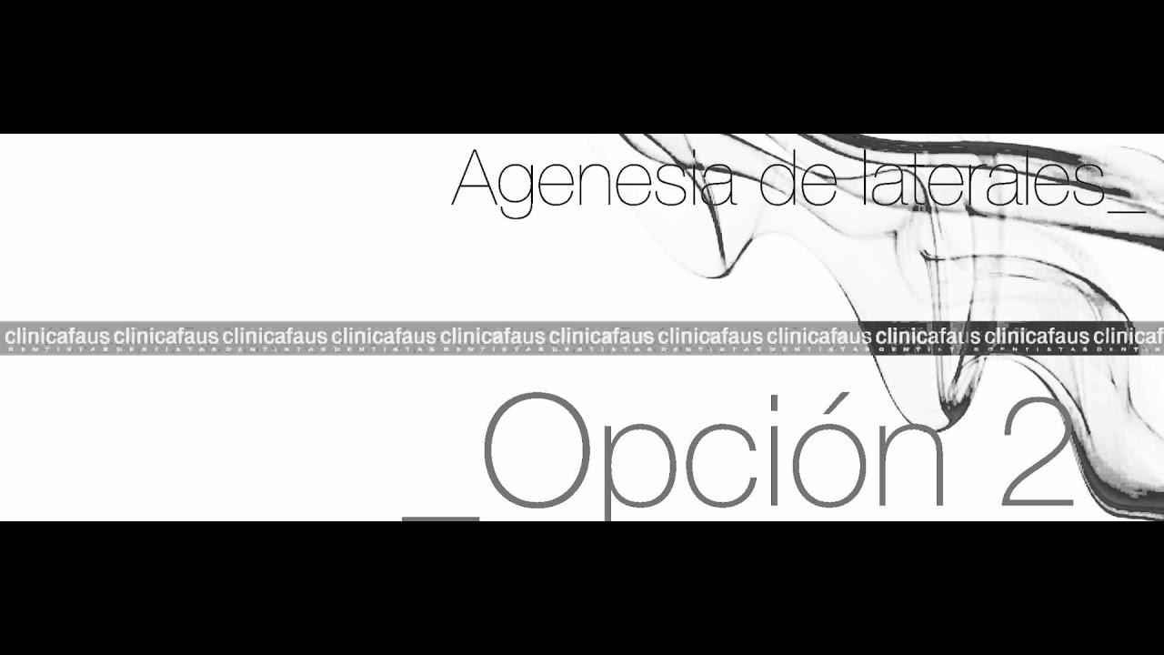 agenesia incisiva tratamiento lateral superior