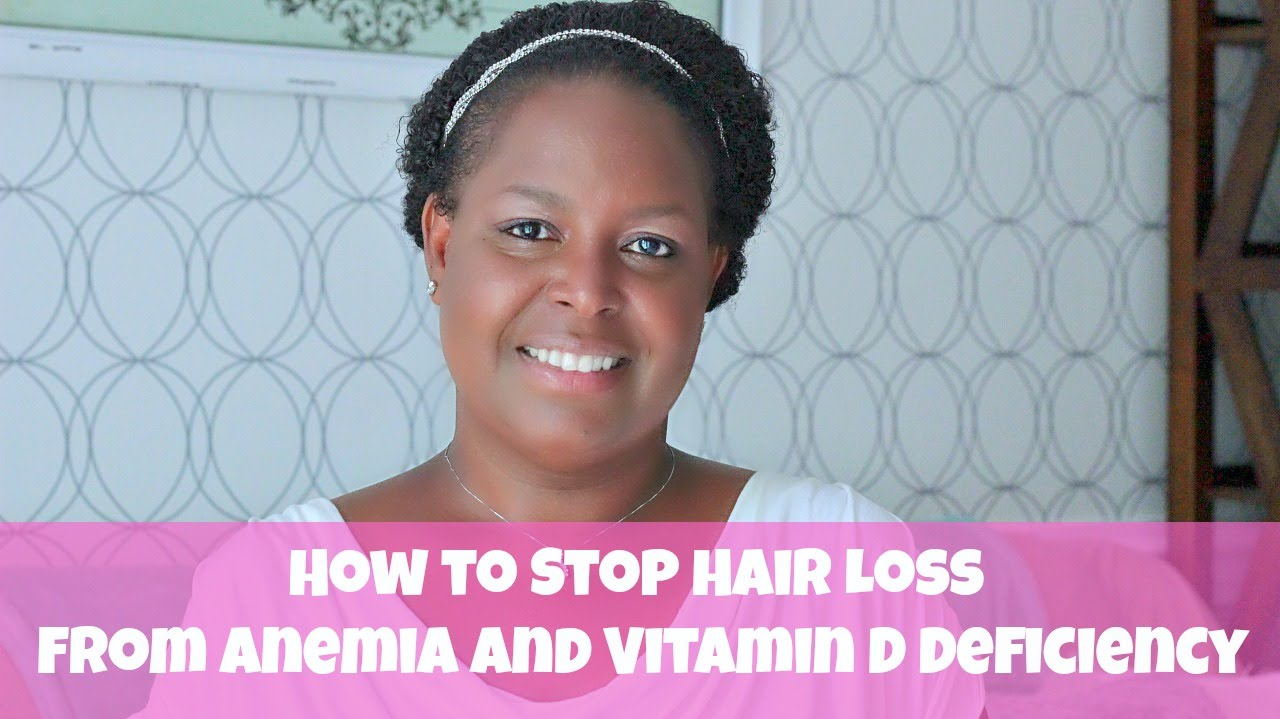 How to Stop Hair Loss From Anemia and Vitamin D Deficiency ...