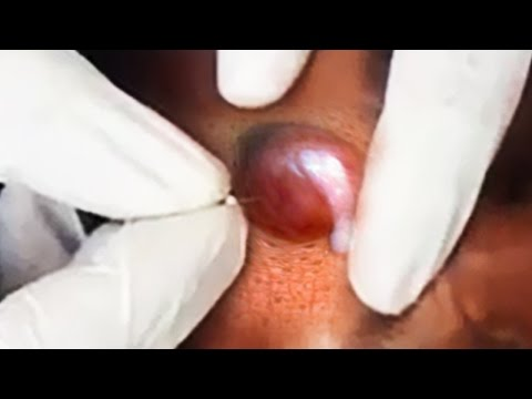 Trypophobia Pimples and Zits!   Viral Whitehead Popping?