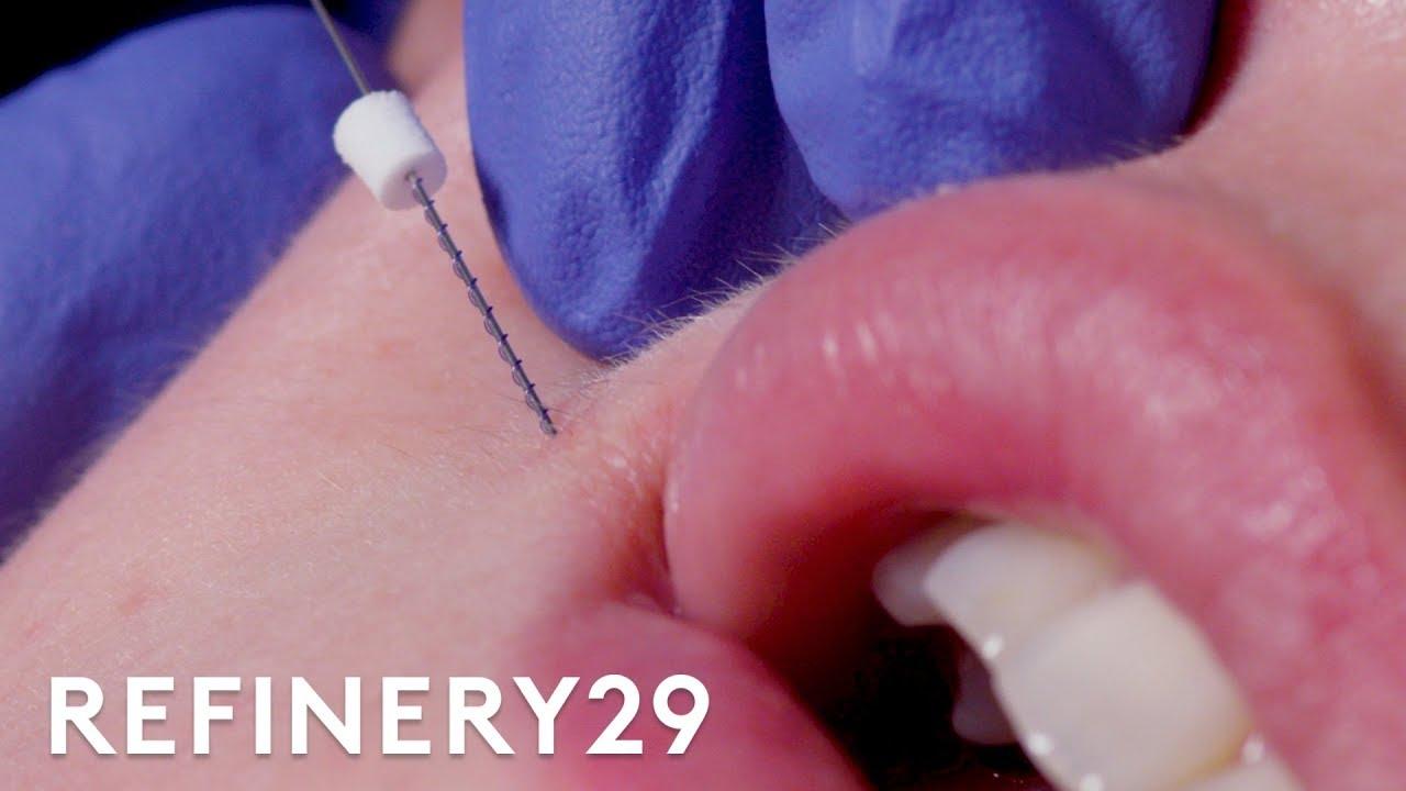 I Got Threads Injected Into My Lips | Macro Beauty | Refinery29