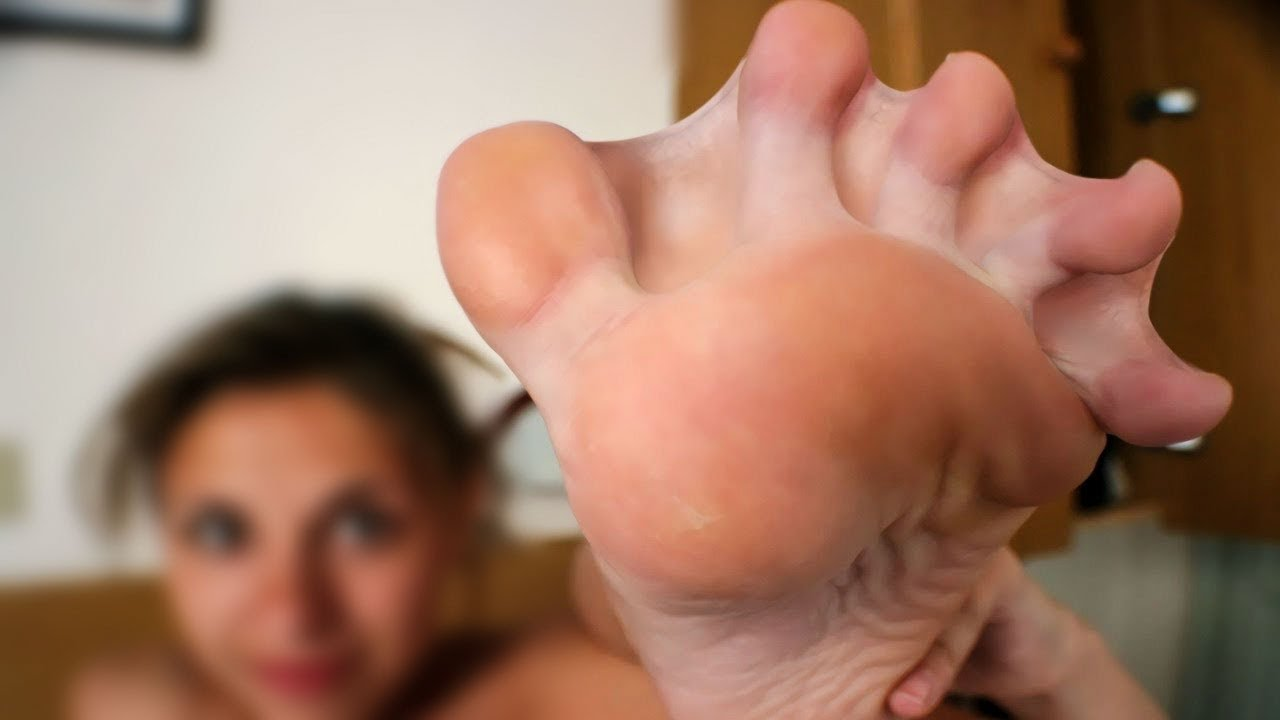 смотреть секс с физическими уродствами