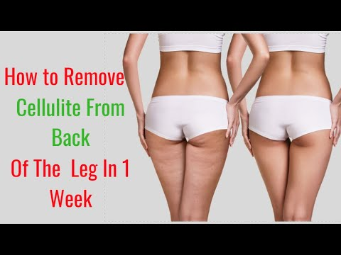 How to Remove Cellulite from the Back of Legs in a Week