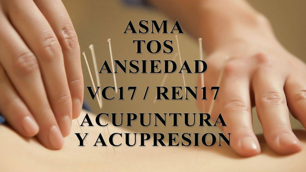 puntos de acupuntura para aliviar la tos