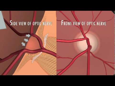 Optic Nerve Fibers