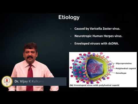 Varicella Zoster Infection - Dr. Vijay Kulkarni