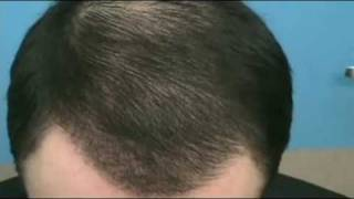 Doctor Hasson Hair Transplant - 4600 Grafts at 4 Months Post-Op - One Session