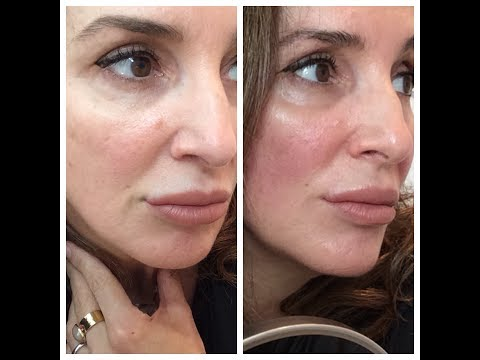 Facial Lifting & Toning With Microcurrent At Home