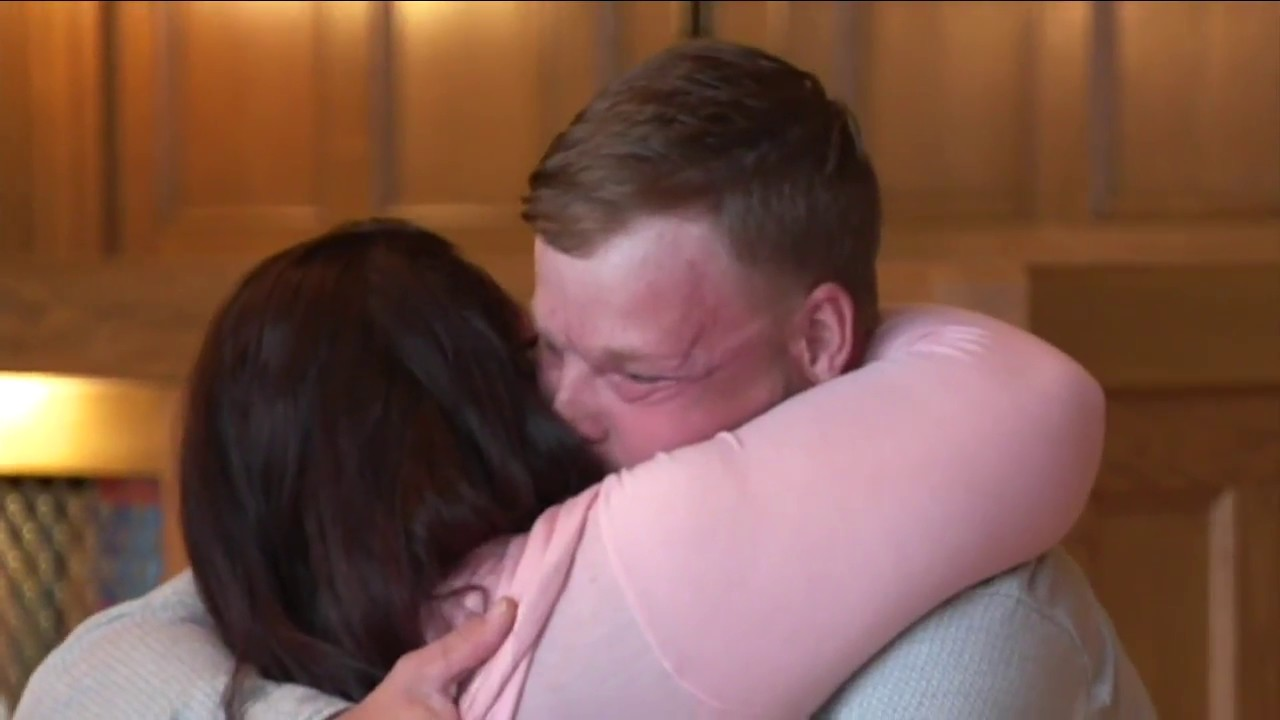 Woman meets transplant recipient of husband's face for first time