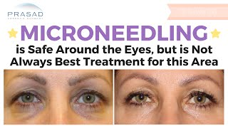 Microneedling is Safe Around the Eye Area, but May not be Most Suitable Treatment