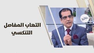 التهاب المفاصل التنكسي  - د.علي العتوم