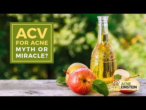 apple-cider-vinegar-(acv)-for-acne