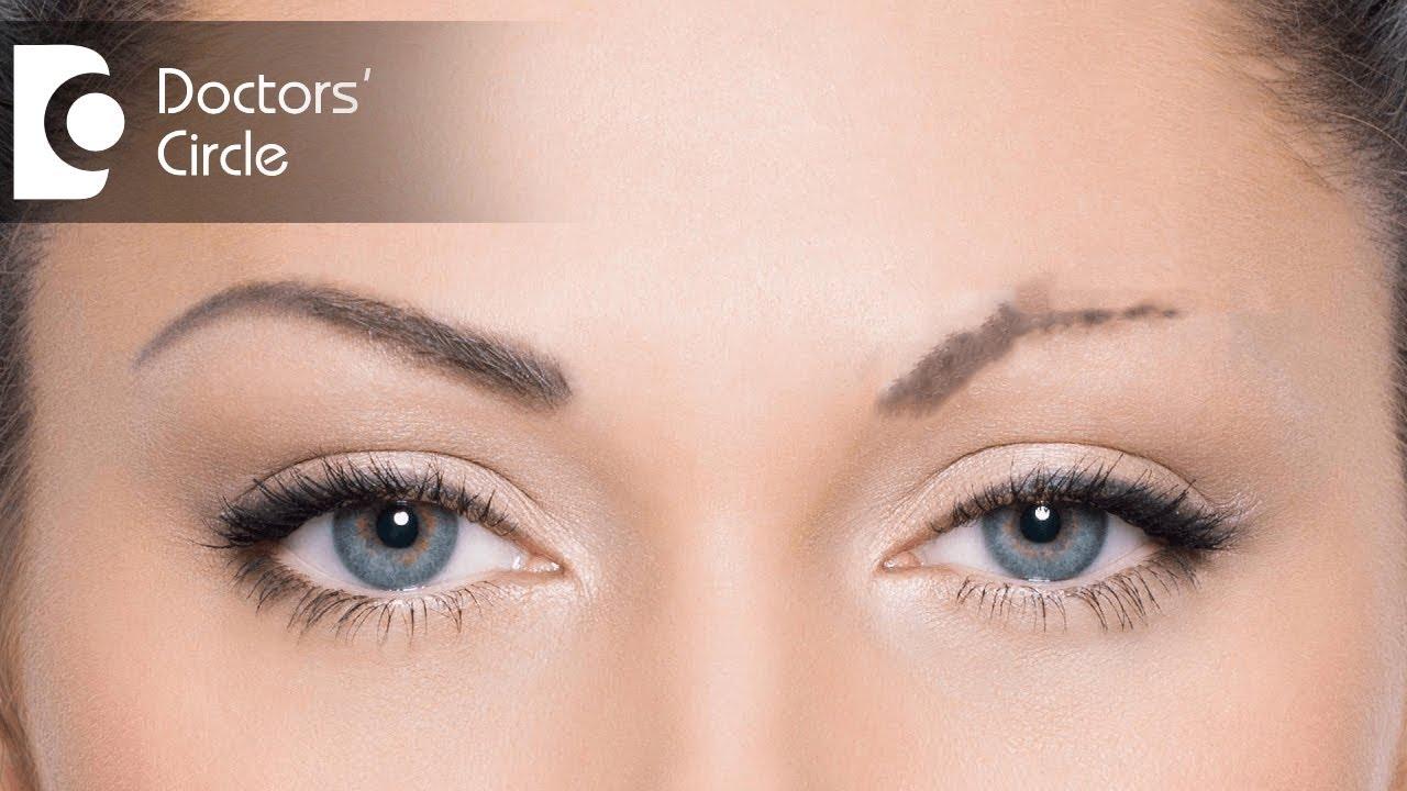 Ways to grow back eyebrows - Dr. Rajdeep Mysore - YouTube