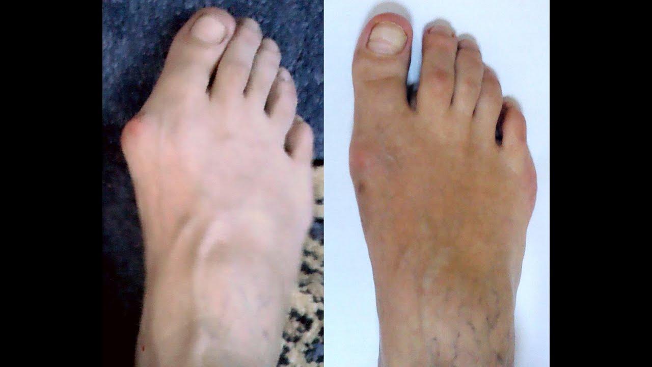 Исправление косточек на ногах