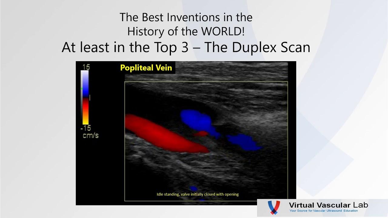 What is a duplex vascular scan? 29