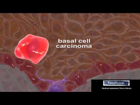 Basal Cell Carcinomas (Medical Animation Video 3D)