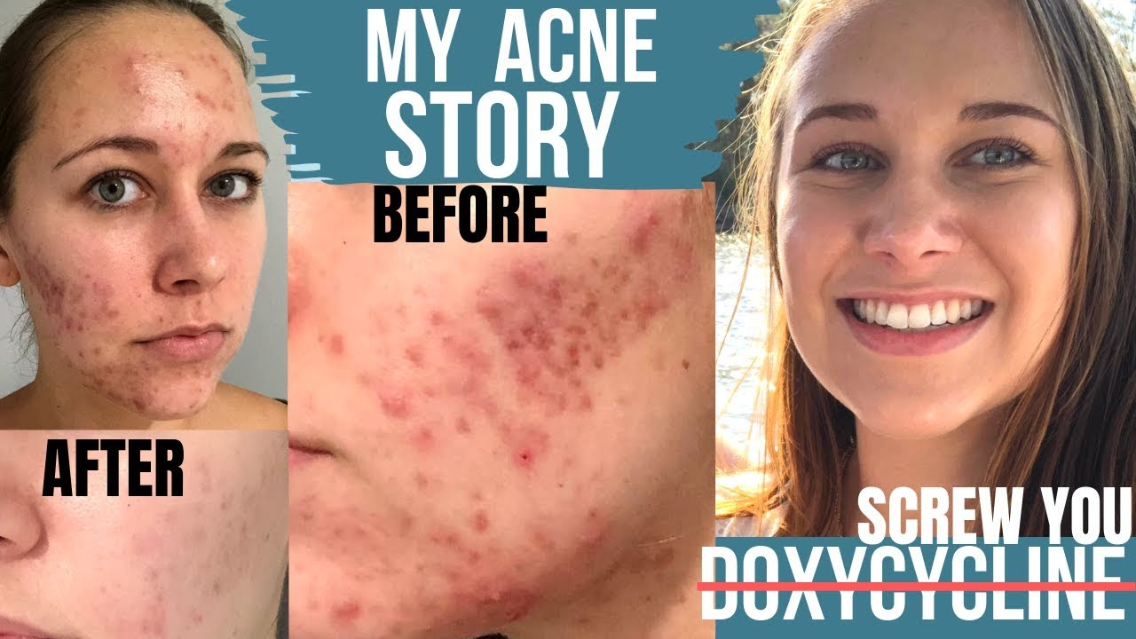Acne Antibiotics Doxycycline Makes Acne Worse My Acne Story Before After With Picture Timeline Youtube
