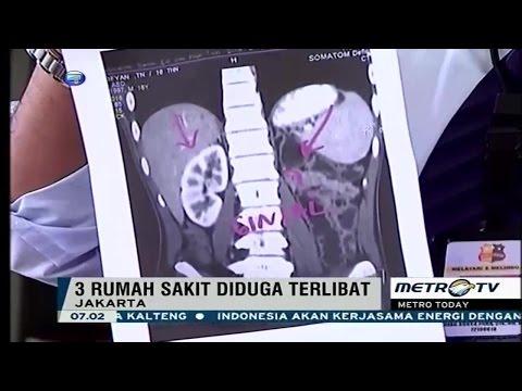 Polisi Bongkar Sindikat Jual Beli Ginjal, Satu Ginjal Dijual Rp 300 Juta, 3 RS Terlibat