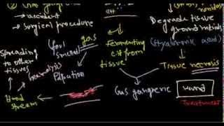 Clostridium Perfringens Infection And Pathogenesis
