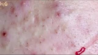 Relax Every Day Самое залипательное видео давить прыщи Dermatologist video to press pimples АКНЕ 3
