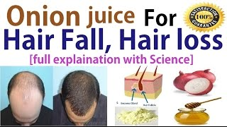 Onion juice help for hair fall, hair loss, dandruff ?    full explain with science   100% work