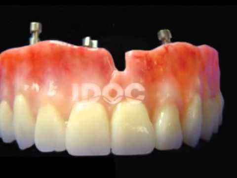 Porcelain Implants in  IDOC Dental Lab, Inc.