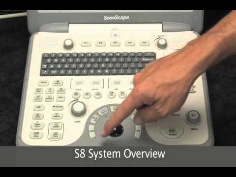 Sonoscape S8 Color Doppler Ultrasound Machine | Overview