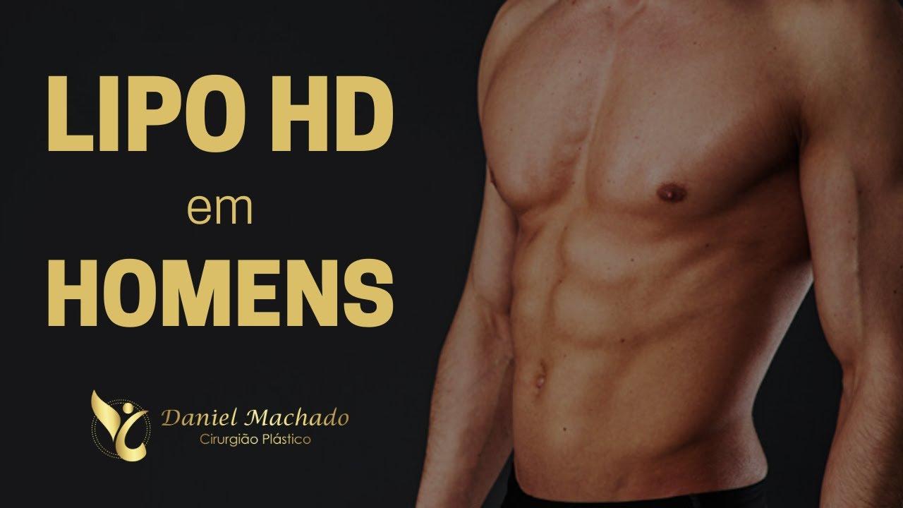 A Lipo HD é uma boa Cirurgia para os HOMENS?