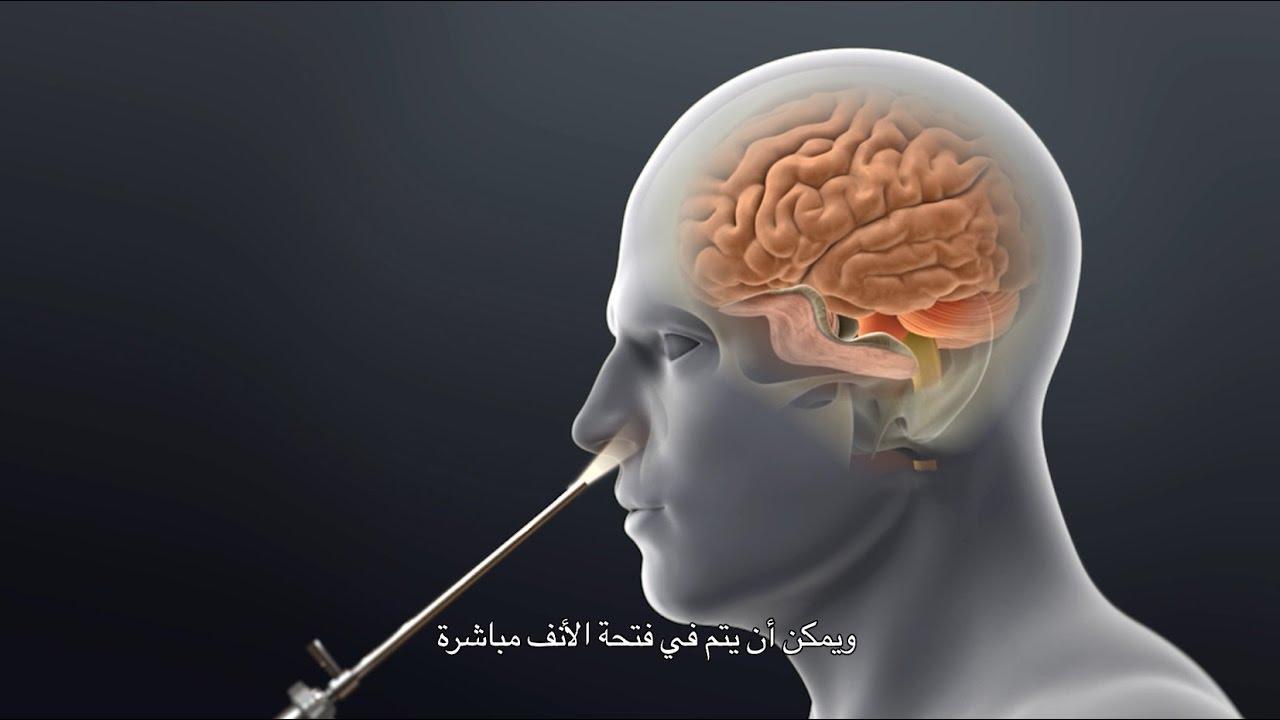svorio hipofizės adenoma)