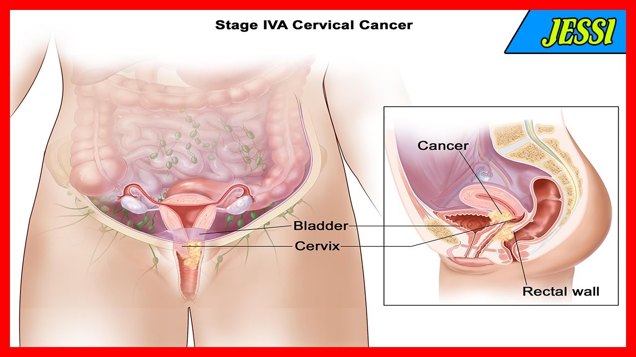 Cervical Biopsy Overview    Common Gyn Problems - YouTube