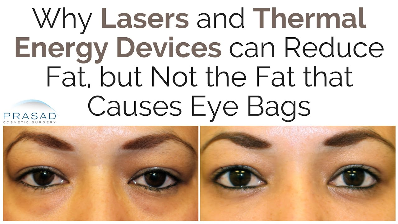 Why Lasers Can Reduce Fat But Not The That Causes Eye Bags
