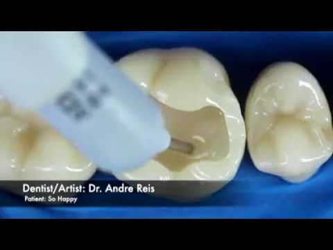 Menarik.. Inilah cara dokter menambal gigi yang berlubang - YouTube ac6fd3a45b