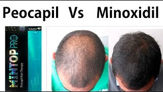 Minoxidil vs Procapil for hair fall, hair loss male female which is best ?