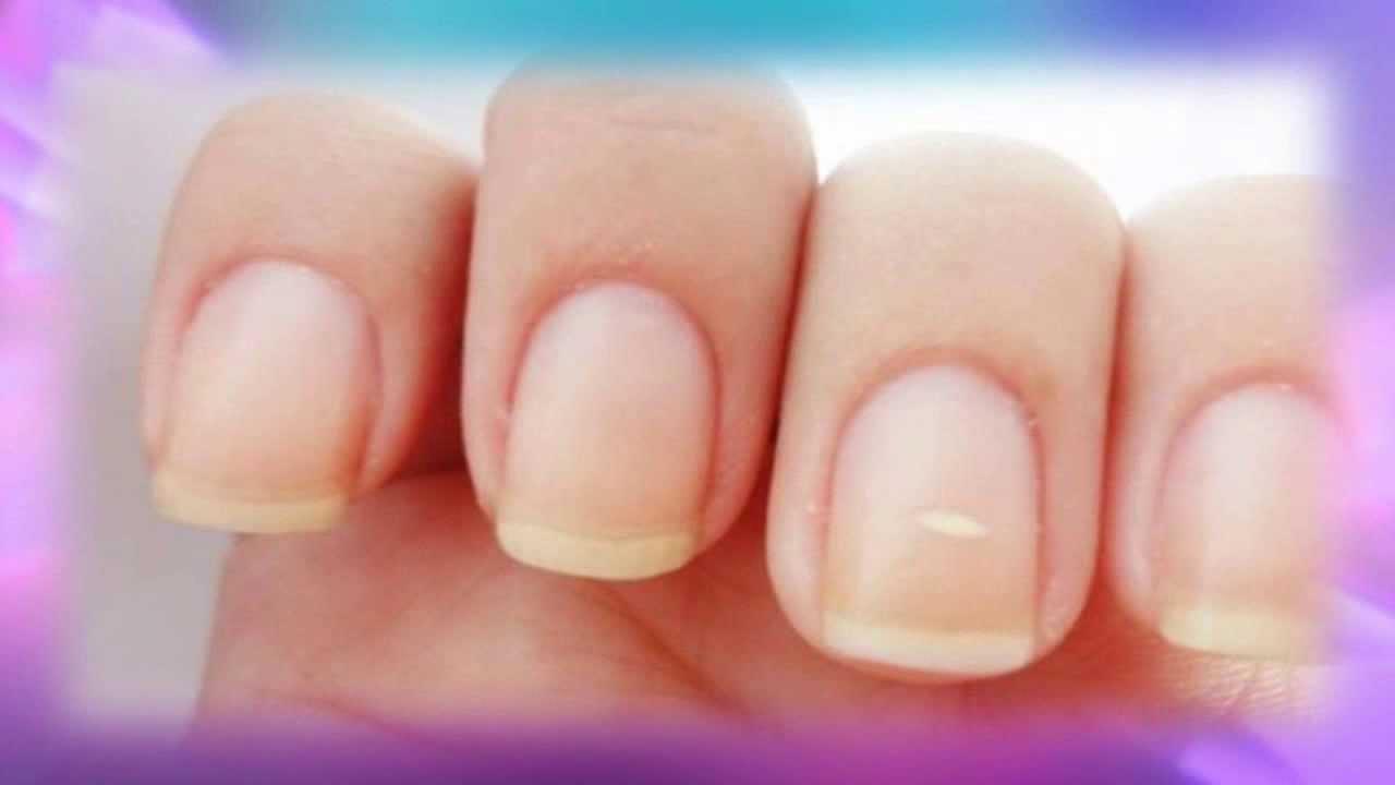 Porque aparecen manchas blancas en las uñas - YouTube