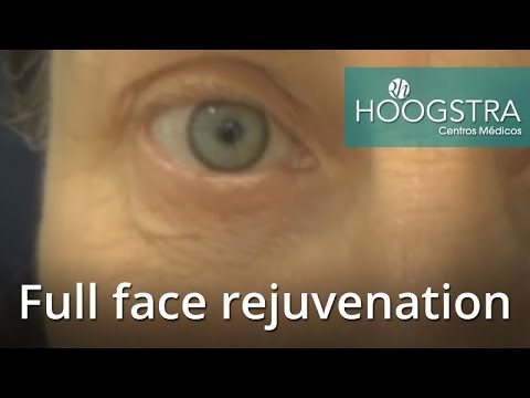 Full face rejuvenation (17099)