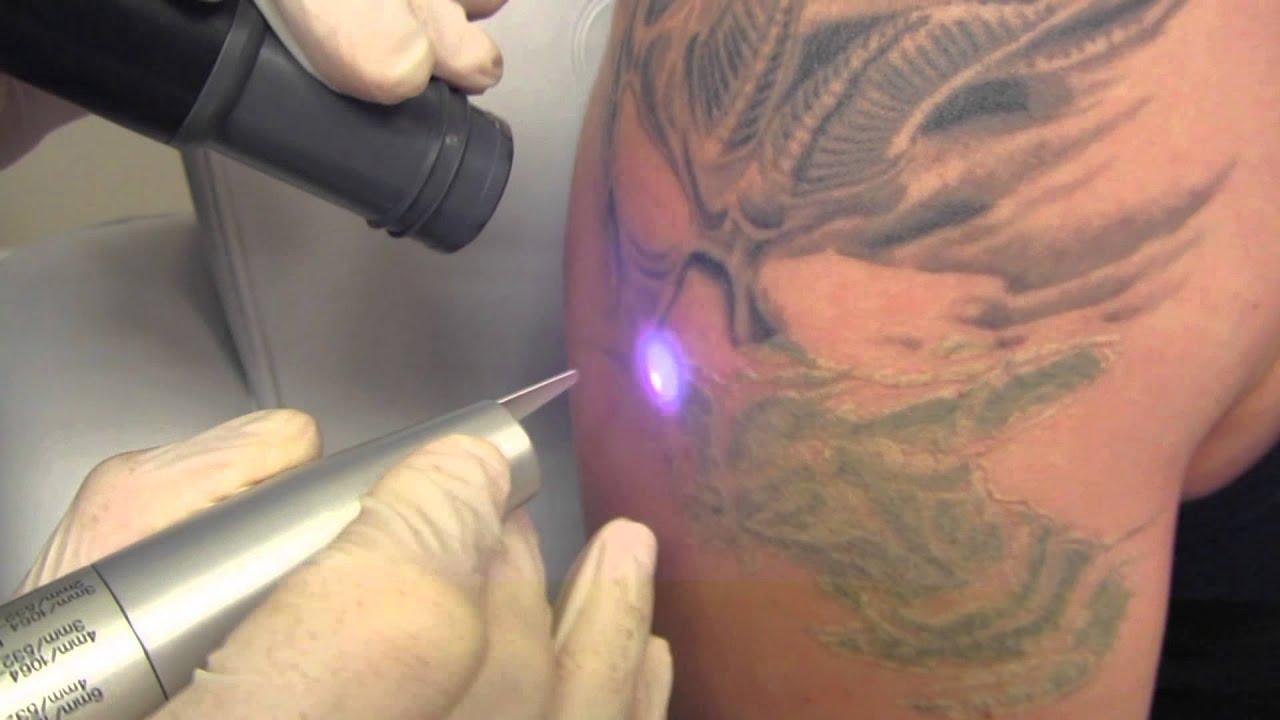 tatovering behandling efter
