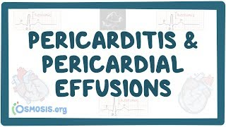 Pericarditis And Pericardial Effusions   Causes, Symptoms, Diagnosis, Treatment, Pathology
